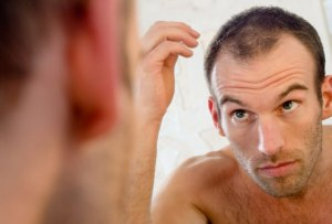 Male-Hair-Loss-Belgravia
